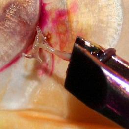Cara mengangkat kutu jangkar pada ikan koi